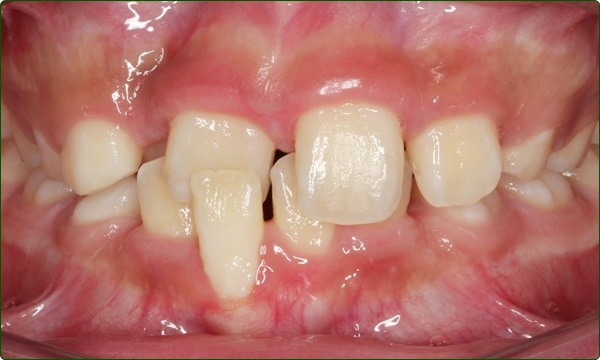 orthodontics-braces-Common Orthodontic Problems-Orthodontic Problems-Irregular Teeth