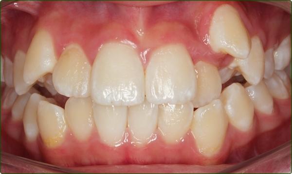orthodontics-braces-Common Orthodontic Problems-Orthodontic Problems-Irregular Teeth
