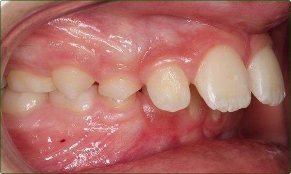 orthodontics-braces-Common Orthodontic Problems-Orthodontic Problems-Increased Overjet