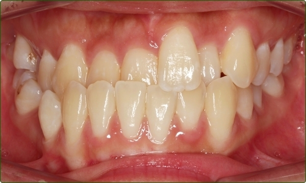 orthodontics-braces-Common Orthodontic Problems-Orthodontic Problems-Crossbite