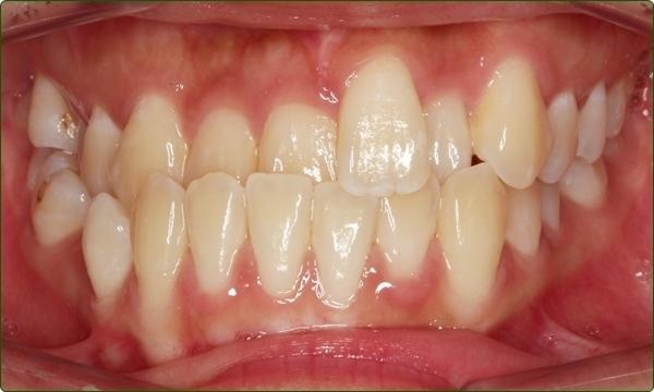 orthodontics-braces-Common Orthodontic Problems-Orthodontic Problems-Crossbite