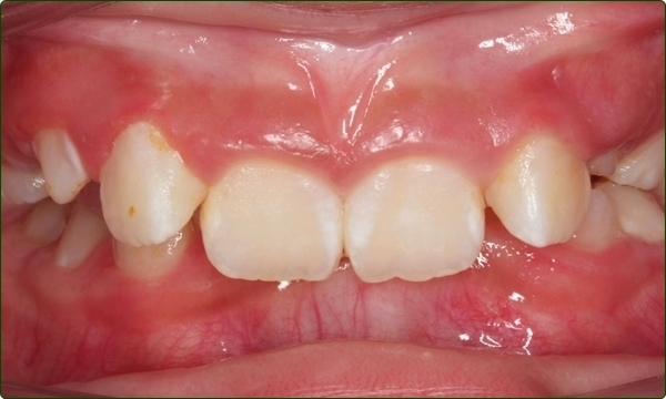 orthodontics-braces-Common Orthodontic Problems-Orthodontic Problems-Deepbite