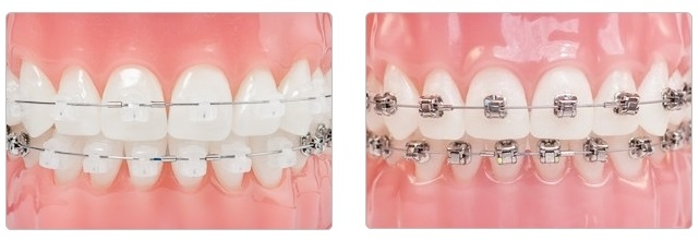 自鎖式金屬牙箍及透明牙箍-braces-Damon-3m smartclip-Aesthetic Self-ligating Braces