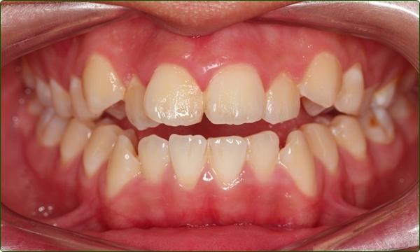 牙齒矯正專科-箍牙醫生-箍牙常見問題-牙齒矯正問題-前牙開咬-牙齒排列不齊