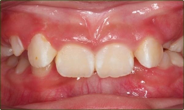 牙齒矯正專科-箍牙醫生-箍牙常見問題-牙齒矯正問題-咬合過深-牙齒排列不齊