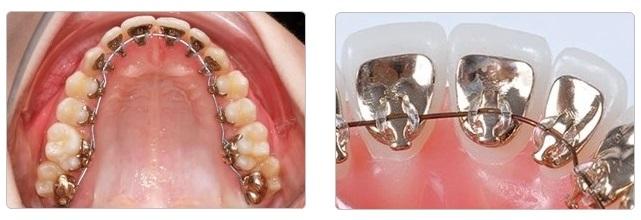 箍牙-牙箍-隱形內箍牙箍-Incognito-Lingual Invisible Braces
